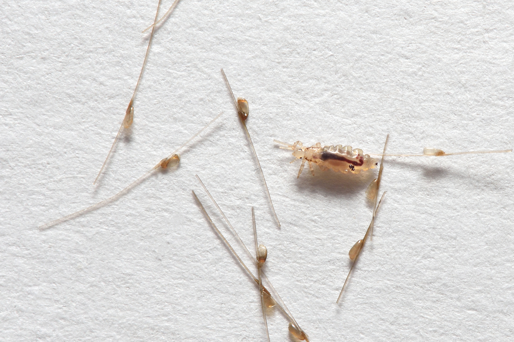 10 Fast Facts about Lice Eggs